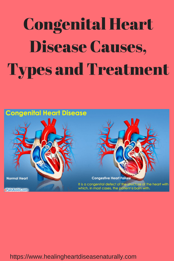 Congenital heart disease types, causes, and treatment