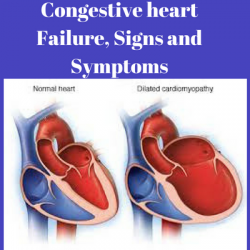 Congestive heart failure stages, congestive heart failure life expectancy, what is congestive heart failure