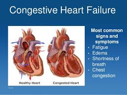 Congestive Heart Failure signs, symptoms, and causes