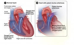 Tetralogy of Fallot and congenital heart disease