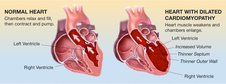 Are cardiomyopathy and heat failure the same thing?Is cardiomyopathy common?