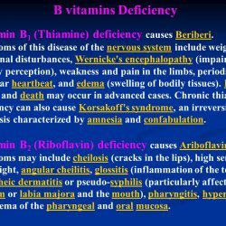 Thiamine deficiency and heart disease. low thiamine