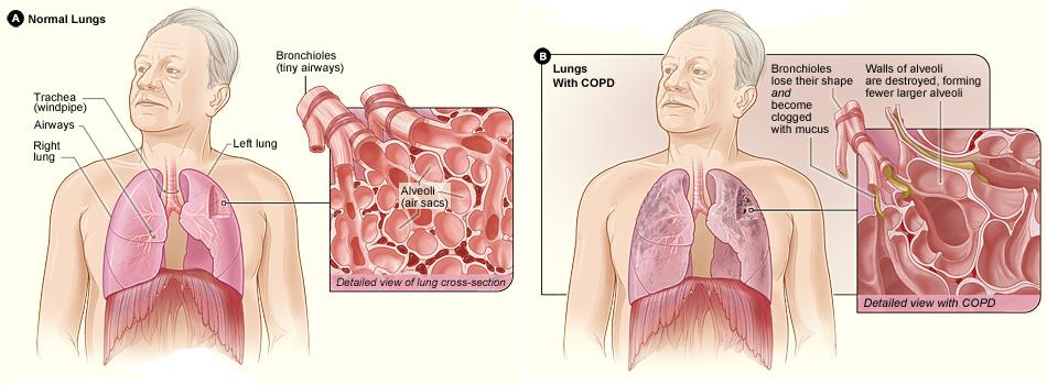 Natural Remedies for COPD