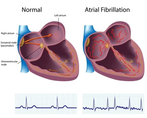 Is atrial fibrillation dangerous? Can atrial afib cause a stroke? Can atrial fib be cured?