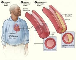 Coronary Artery Disease: Overview, Symptoms, Causes and Treatments