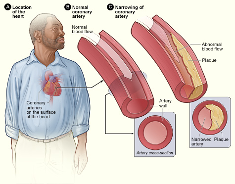 what is coronary artery disease