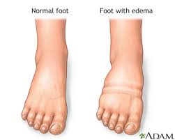 swollen ankles pictures