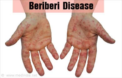 beriberi definition, beriberi deficiency disease, wet beriberi images