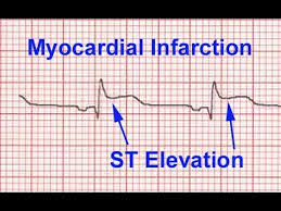 What Does an EKG Look Like In a Heart Attack With Pictures? How to determine a heart attack?