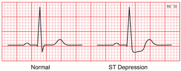 What Does an EKG Look Like In a Heart Attack With Pictures