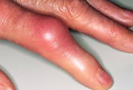 How to Ease the Pain of Gout Naturally