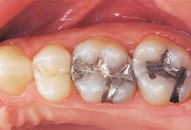 Dental Infection and Heart Disease