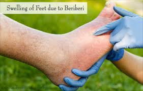 Beriberi Definition (Thiamine Deficiency)- Beriberi Pictures and Images