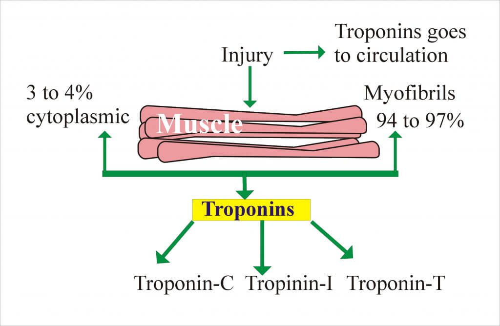 What is a normal troponin, Troponin 1 levels normal, trop 1 normal level, normal levels of troponin.