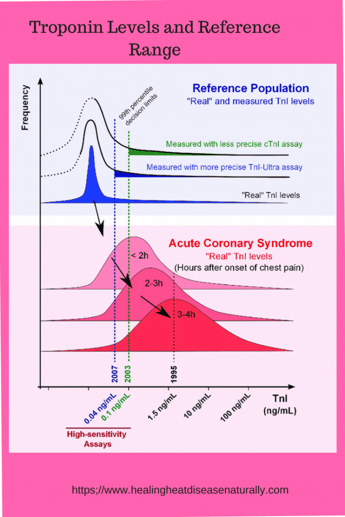 Troponin level in nursing, normal troponin level, normal troponin range,