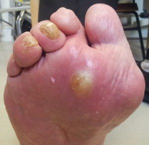The Best Diabetic NeuropathyWounds And Foot Pain Solutions