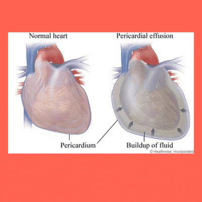 Pericardial effusion and pericardial window.