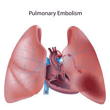 What is a pulmonary embolism? Why are pulmonary embolism dangerous?