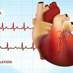 Atrial flutter treatment, atrial flutter causes,