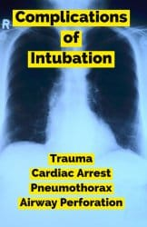 Upper airway obstruction, positive airway pressure, risk factors for intubation