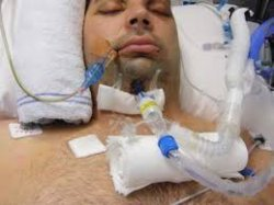 CPAP continuous positive airway pressure, airway obstruction, risk factors,