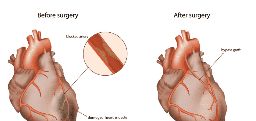Coronary artery disease signs and symptoms