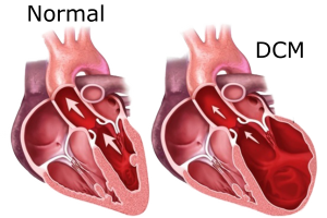 Common causes of congestive heart failure
