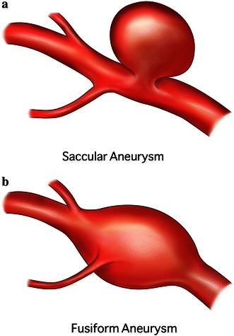 Why is an Angioplasty an Incorrect Treatment for an Aneurysm?