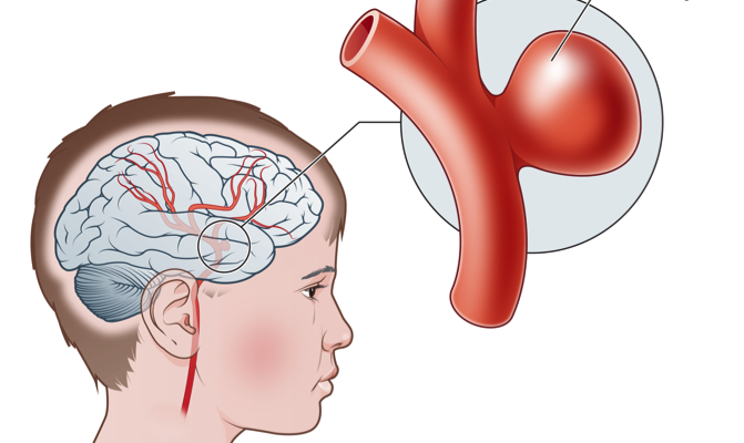 why is an angioplasty an incorrect treatment for an aneurysm